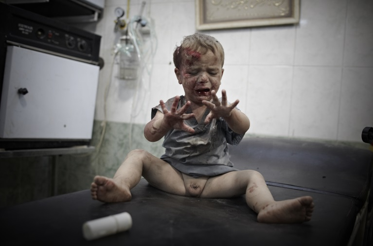 Wounded Baby, Aleppo